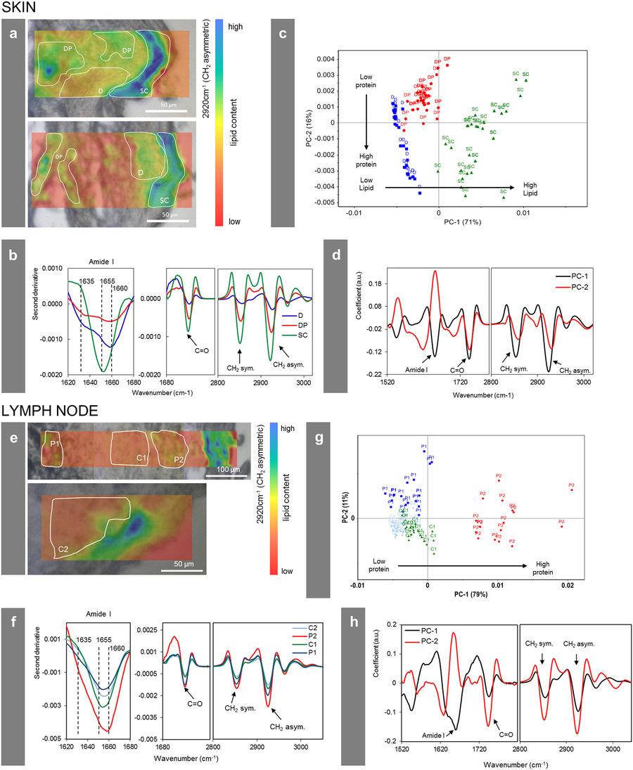Figura 5 Cambiamenti della composizione e della struttura biologica nella vicinanza cellulare delle particelle di pigmento del tatuaggio. Sezione del donatore 4 analizzato mediante sincrotrone μ-FTIR a ID21, ESRF. ( A , e ) Mappa in derivata seconda ottenuti a 2920 cm -1 (-CH 2 vibrazioni asimmetriche) di due zone diverse sia nel nodo pelle o linfa donatore 4 in sovrapposizione un'immagine al microscopio ottico visibile. I singoli punti per l'analisi PCA in ( c ) e ( g ) sono stati prelevati dalle aree indicate. ( b , f ) Spettri medi di ciascuna regione segnata in ( a , e ) in secondo derivato. ( c , g) PCA punteggio di PC-1 vs PC-2. ( d , h ) Parti di caricamento di PC-1 e PC-2. Abbreviazioni: SC = stratum corneum e epidermide; D = derma; DP = derma con particelle; P1, P2 = regioni contenenti particelle; C1, C2 = regioni di controllo senza particelle.