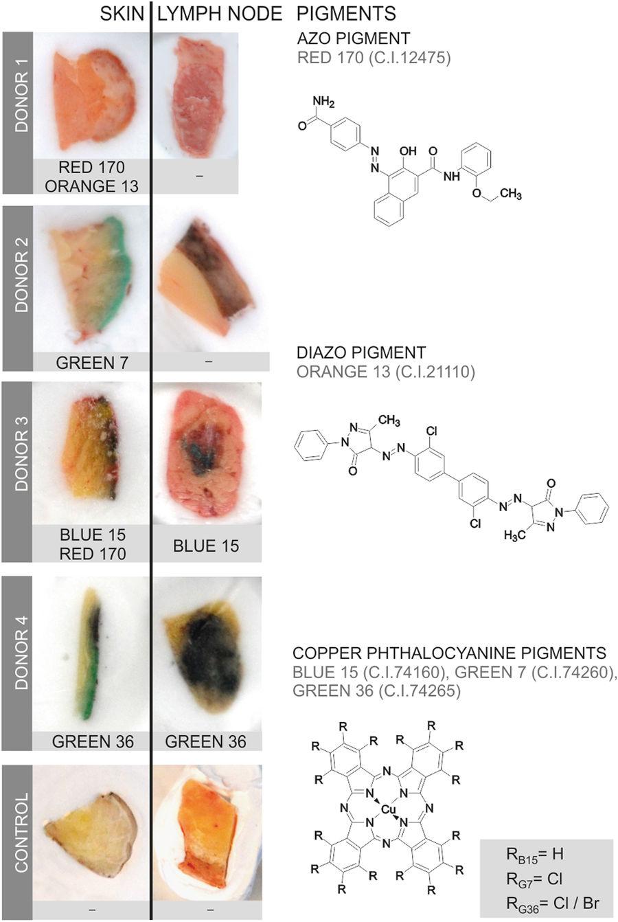 Figura 2 I pigmenti organici si traslocano dalla pelle ai linfonodi. I pigmenti organici in pelle liscia e linfonodi sono stati identificati mediante LDI-ToF-MS. I campioni adiacenti della pelle e dei linfonodi (circa 5-10 mm) vengono visualizzati in criomagina dopo la preparazione di sezioni sottili per analisi μ-FTIR e μ-XRF. I campioni della pelle sono orientati con la sua superficie sul lato destro. I pigmenti organici identificati sono indicati sotto ogni campione. Le strutture chimiche dei pigmenti organici identificati nei campioni sono visualizzati sulla destra.